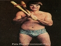 Pete Rose Jockey Underwear Ad 1977