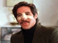 Geraldo Nose Fight